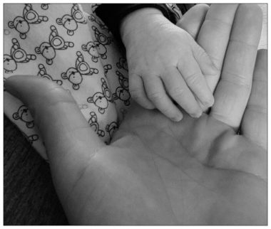 Grandparenting with neuromyelitis optica and disability   Neuromyelitis News   A black and white photo of columnist Lelainia Lloyd's hand and her new grandson Phoenyx's tiny hand